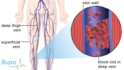 A blood clot in the deep vein of the calf which causes deep vein thrombosis