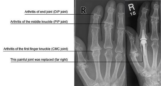 arthritis csukló kézkezelés