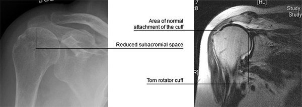 Rotator Cuff Problems & Tears