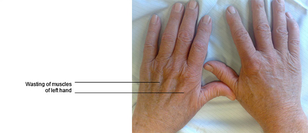 Ulnar Neuritis (Cubital tunnel syndrome)